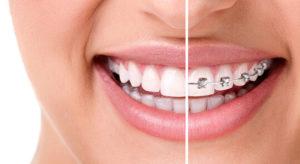 ortodonta gdynia