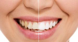 wybielanie zębów gdynia